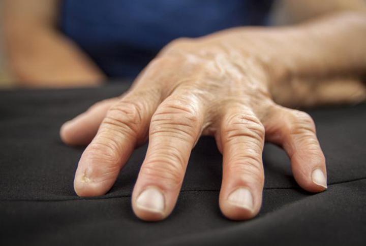 arthritis of the hand treatment