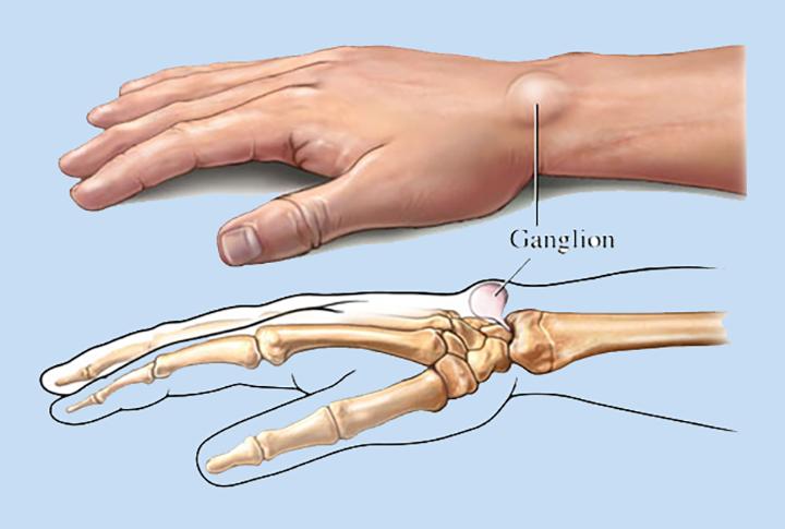 Ganglion Cysts Treatment