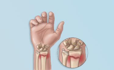 Wrist Fracture treatment broward & palm beach
