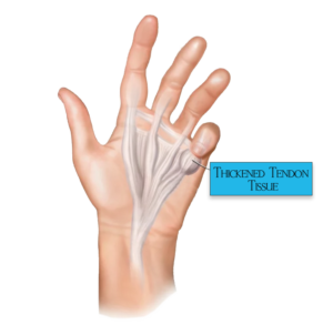 Dupuytren-Disease-hand