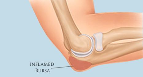 Elbow Bursitis treatment broward & palm beach