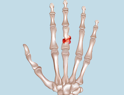 Finger Fracture Treatment in Broward County & Palm Beach